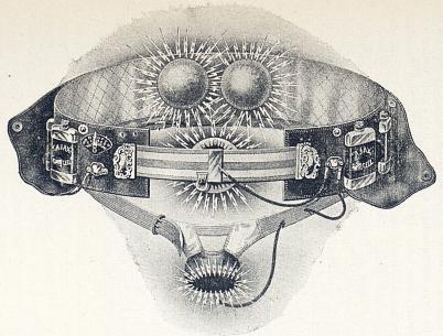 Sålunda utrustad användes «Ajax» torr-cell i vissa fall af könssvaghet, pungåderbråck etc.