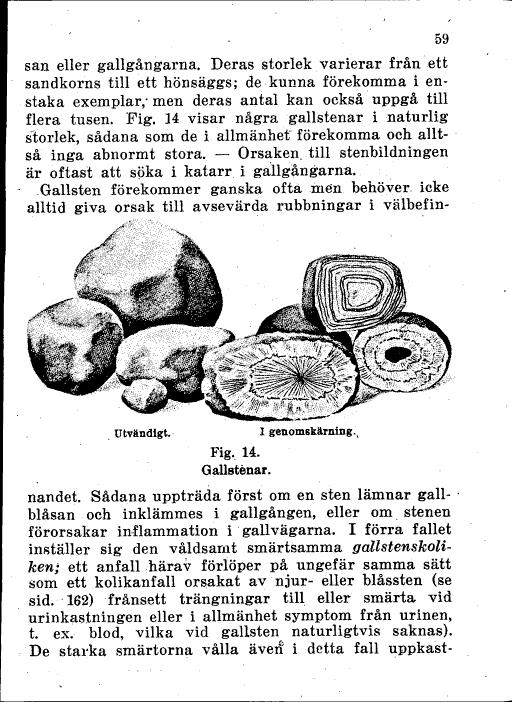 sten i gemensamma gallgången