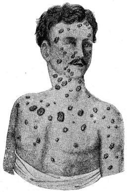 Fig. 24. Syfilitiska fjäll- och knotter-utslag