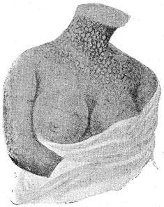 Fig. 26. Syfilitisk pigment-teckning på halsen.