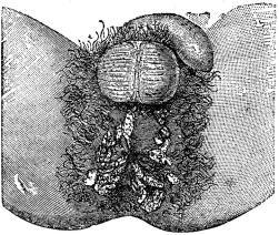 Fig. 27. Syfilitiska breda papler (platta veneriska vårtor).