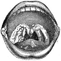 Fig. 28. Platta veneriska vårtor å mjuka<bgomen, tungan och mungiporna.
