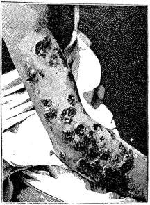 Fig. 37. Syfilitiska sår å armen i tredje skedet.
