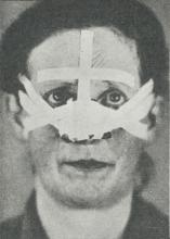 Fig. 4. Radiumpræparat appliceret paa Næsen (med Hæfteplasterbandage). — Fig. 5. Radiumpræparat<bappliceret paa Underlæben (med Hæfteplasterbandage). — Fig. 6. Radiumpræparat appliceret i Øjenkrogen<bmed Afdækning af selve Øjet (Hæfteplasterbandage fikseret paa Gazebind om Haaret).