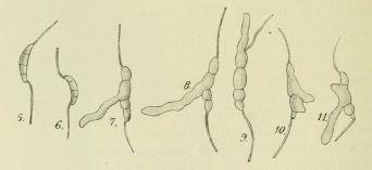 Fig. 5—11. Discosia Artocreas. Konidien im hängenden Tropfen Pflaumendekokt, 5—6 vor der<bKeimung, 7—9 in typischer Weise auskeimend, 9—11 mit anormaler Keimung. <su<smal600</smal</su/<su<smal1</smal</su.